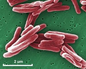 mycobacterium20tuberculosis20030